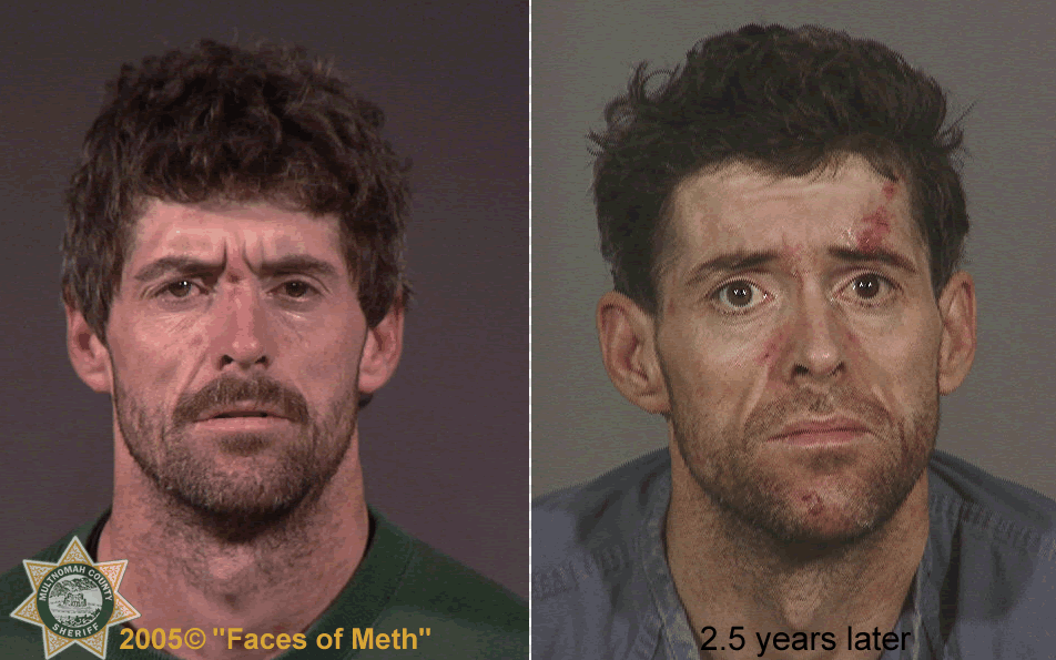 "Before and after., The photo was part of a 2005 project called ""Faces of Meth"" put on by the Multnomah County Sheriff's Office to help raise awareness about the drug's dangers.  (Photo and info courtesy of the Multnomah County Sheriff's Office)"