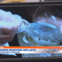 More women removing breast implants due to health issues