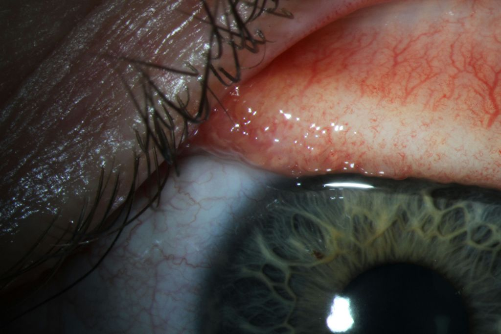 Thelazia gulosa in situ on the surface of the patient's conjunctiva - Photo courtesy Dr John Hoyt<p></p>