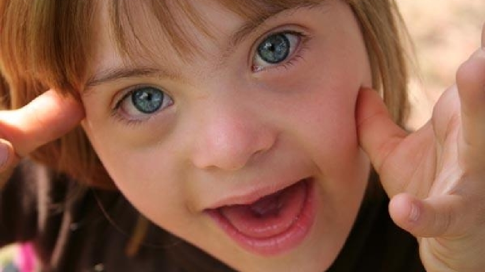local girl wins national award for most beautiful eyes